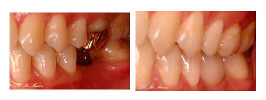 奥歯のインプラントの写真